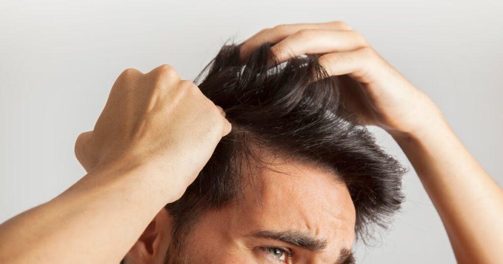 أسباب تساقط الشعر عند الرجال