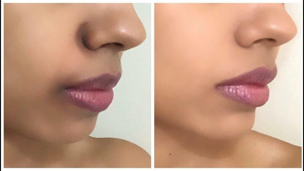 طرق علاج السواد حول الفم