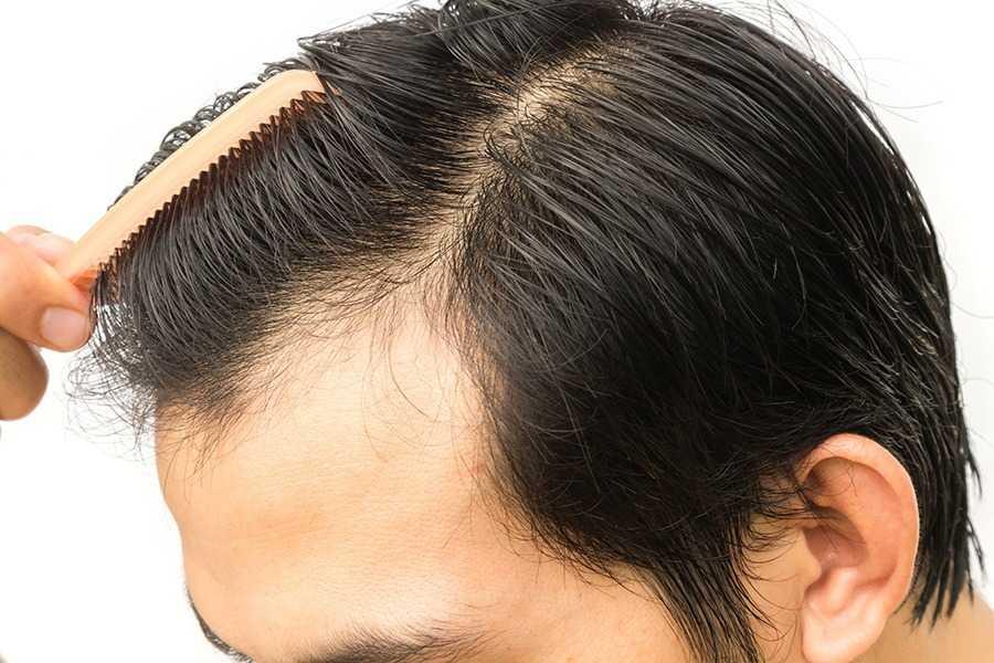 كيف توقف تساقط الشعر بطريقة سهلة للغاية